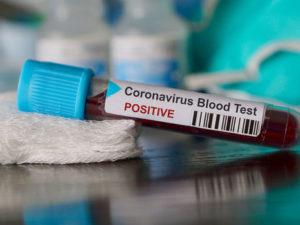 Bugünə koronavirusa yoluxanların sayı açıqlandı