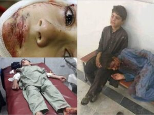 Pakistanda İslam məktəbində partlayış: Çox sayda ölənlər və yaralananlar var