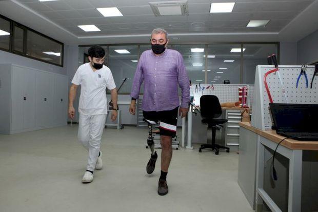 Azərbaycanda hazırlanmış ilk yüksək texnologiyalı protezlər təqdim edildi – FOTO