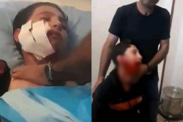 Azərbaycanda dəhşət: Canavar sürüsü şagirdlərə hücum etdi – VİDEO